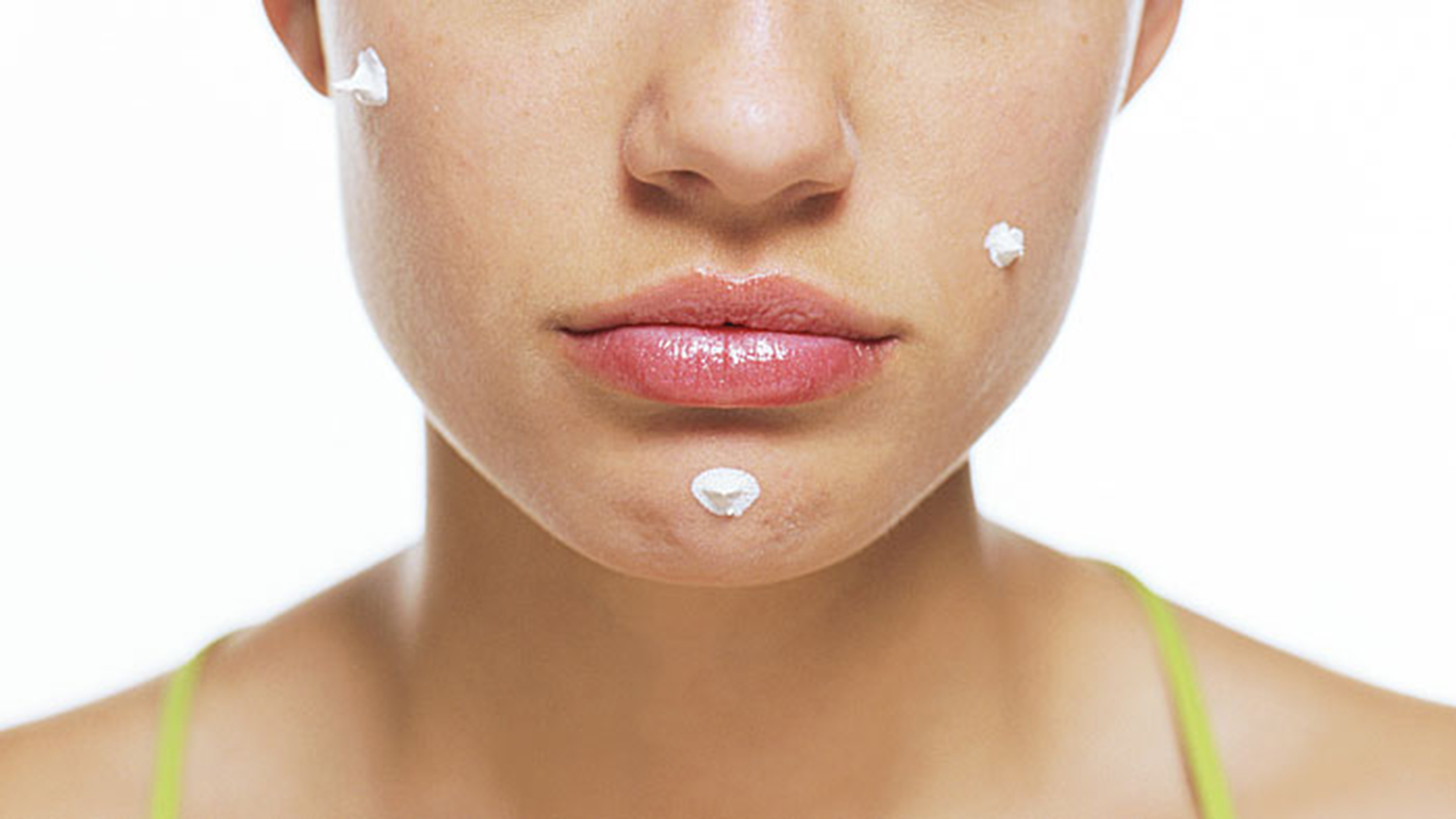 Everything You Need to Know to Get Acne-Free Skin